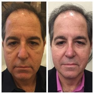 Before and After Dr. R Man-2016